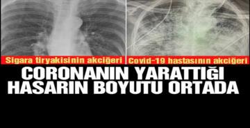 CORONANIN KORKUNÇ ETKİSİ ORTAYA ÇIKTI!
